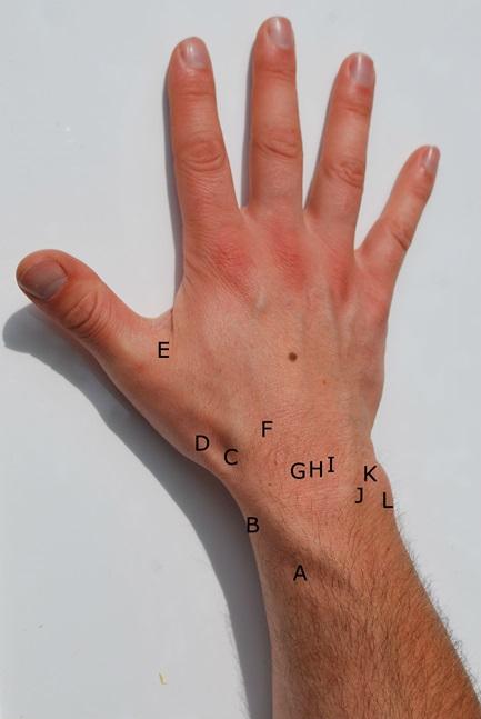 dorsal-wrist-pain