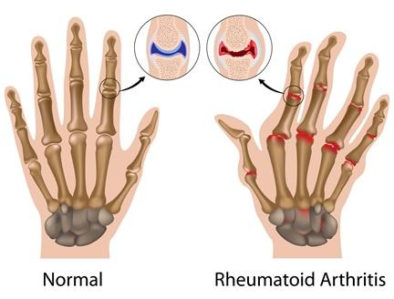 rheumatiod-arthritis