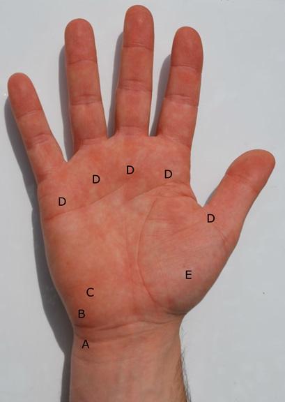 volar-wrist