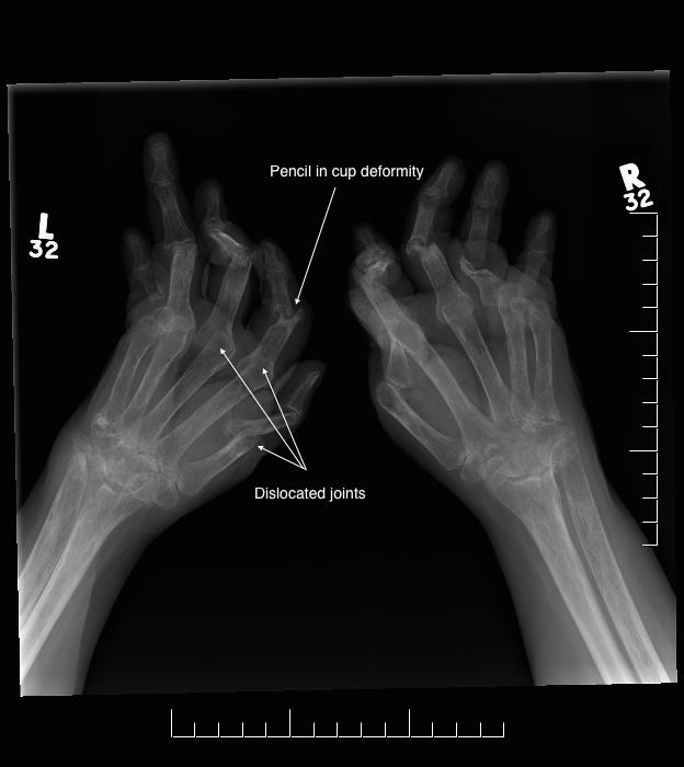 arthritis-mutlians