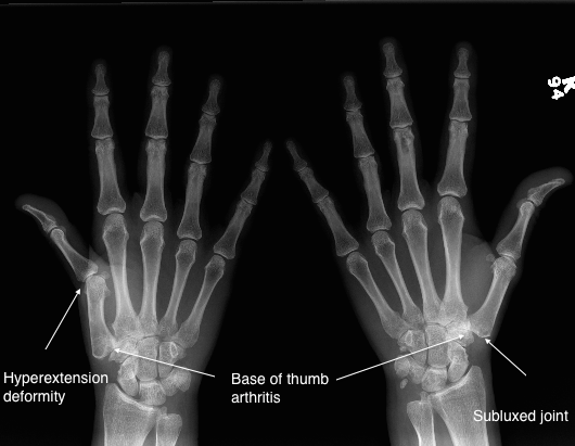 base-of-thumb-arthritis