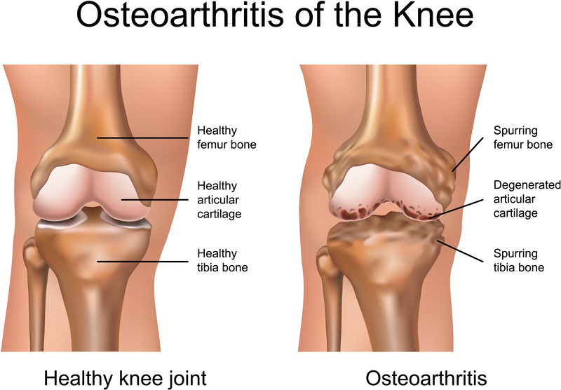 Knee – Replacement - Auckland OrthopaedicsAuckland Orthopaedics
