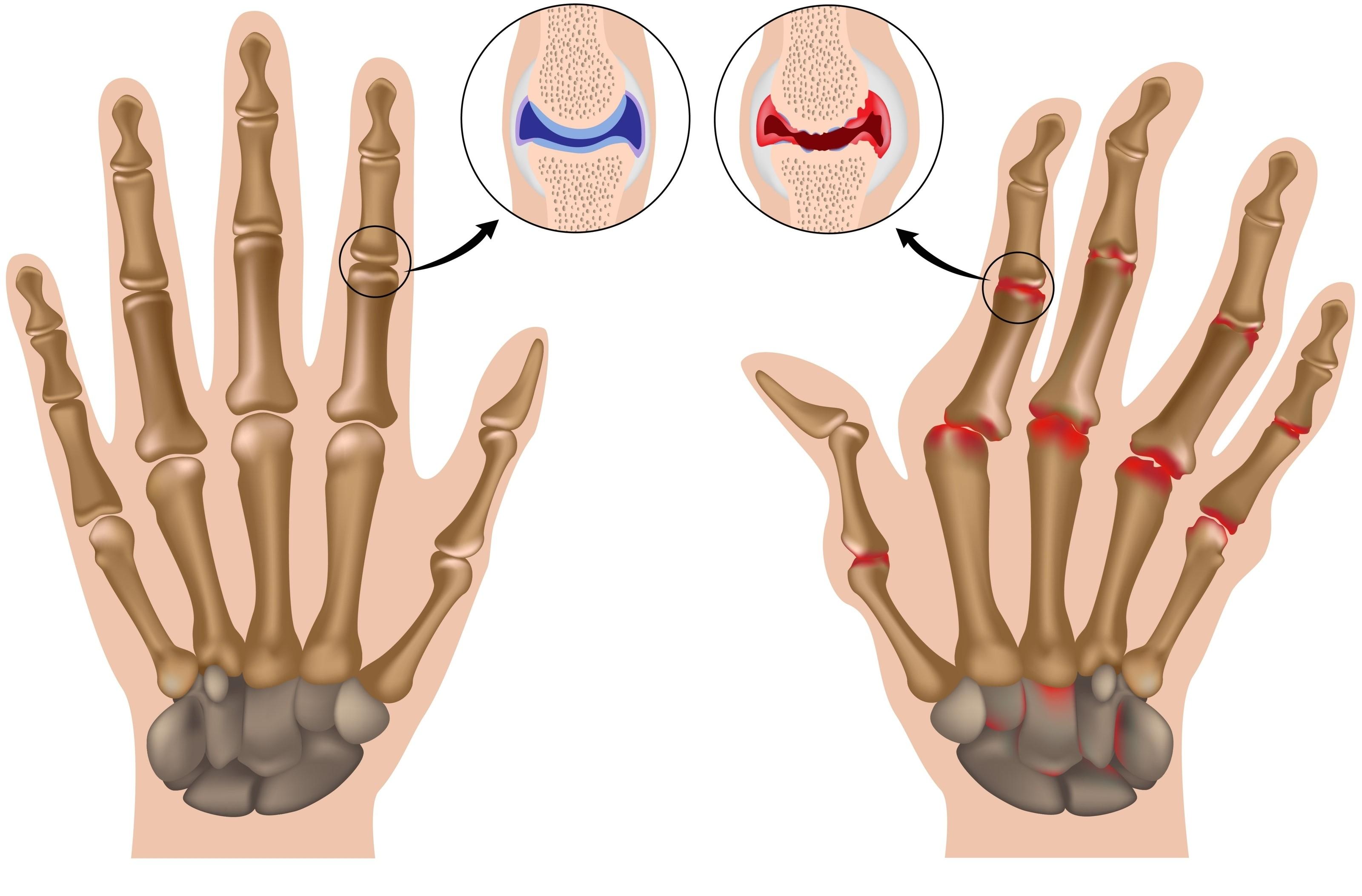 Reumatoidinis artritas ir lytis