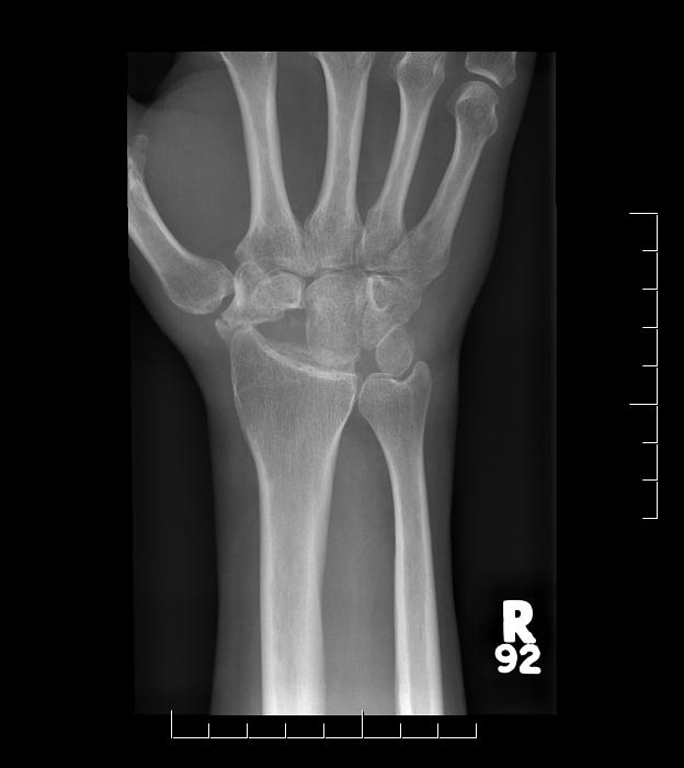 slac-wrist-2